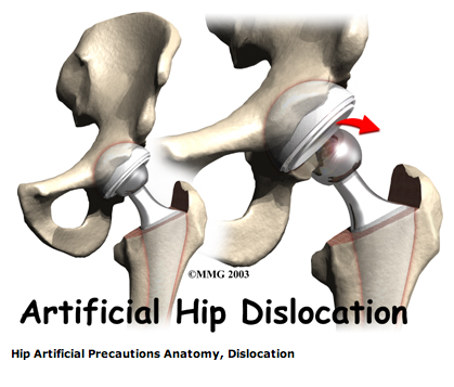 artificial_hip_dislocation.png